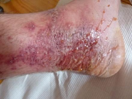 足がただれて痒いのは漢方薬で治った